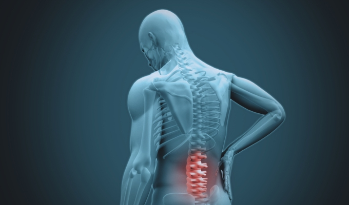 Understanding Spinal Injections