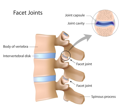 facet-joint-injection